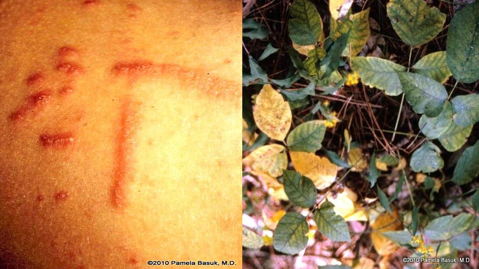 hypersensitivity poison ivy Hypersensitivity diseases the rash produced by contact with poison ivy (contact sensitivity to poison ivy, in case studies in immunology, see preface for details) figure 1225 blistering skin lesions on hand of patient with poison ivy contact dermatitis.